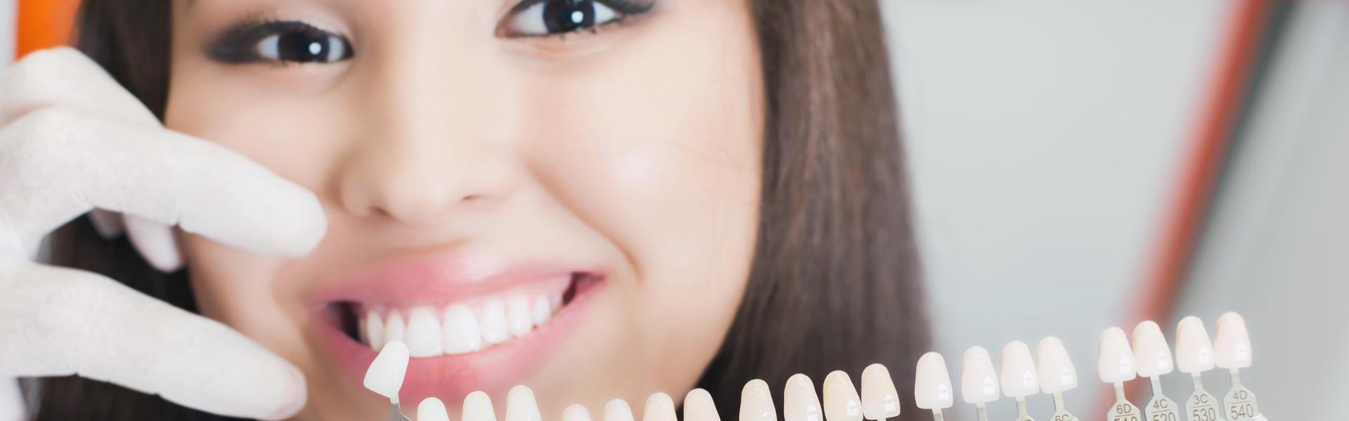 Dentist matching veneers